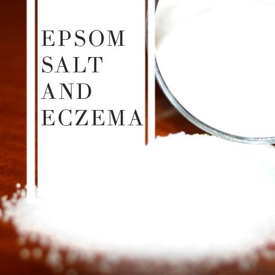 Epsom salt and Eczema