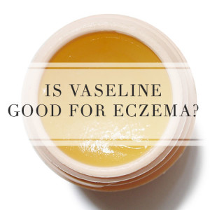 Is vaseline good for eczema?