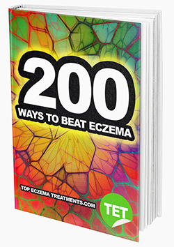 200 Ways to Beat Eczema eBook