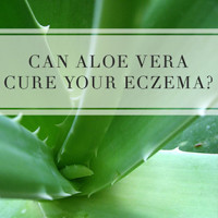 Can Aloe Vera Cure Your Eczema?