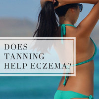 Does tanning help eczema?