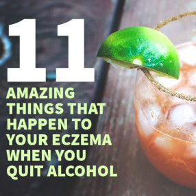 11 Amazing things that happen to your eczema when you Quit Alcohol