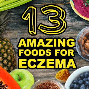 13 Super Foods Good for Eczema