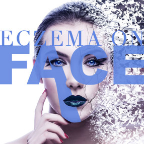 Eczema on face: Best creams and what to avoid
