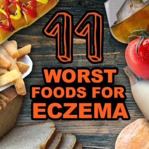 foods to avoid with eczema