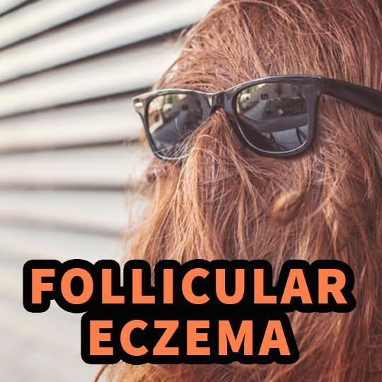 Follicular Eczema