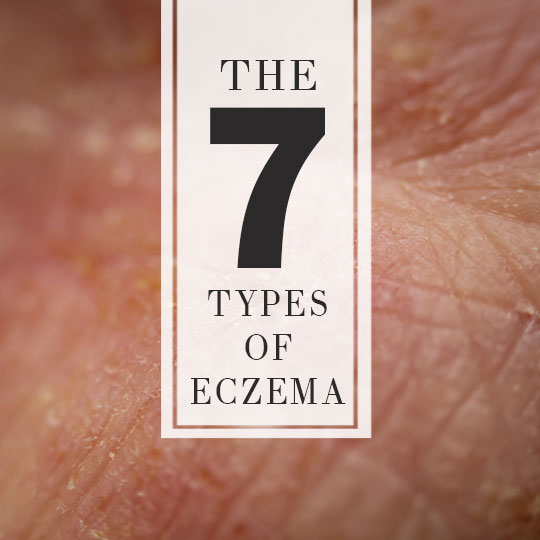 What are the different forms of Eczema?